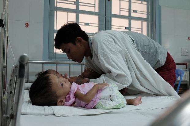Lần đầu tiên sau năm 1975, Việt Nam xuất hiện hai bé gái song sinh dính nhau vùng cùng cụt - Ảnh 8.