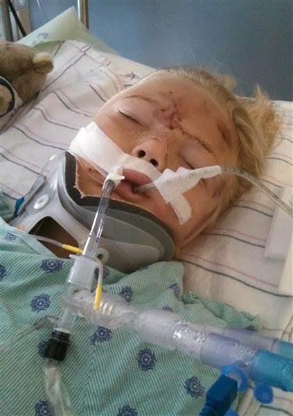 Bé gái 6 tuổi gặp tai nạn, suýt bị cắt đứt đôi người vì một thói lười nguy hiểm của bố mẹ - Ảnh 2.