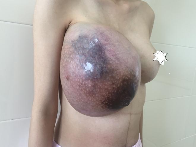 Vừa sinh con, sản phụ phải cắt toàn bộ ngực phải vì khối u khủng