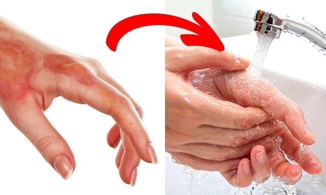 6 cách sơ cứu khi bị thương có thể gây tổn hại nghiêm trọng sức khoẻ của bạn - Ảnh 4.