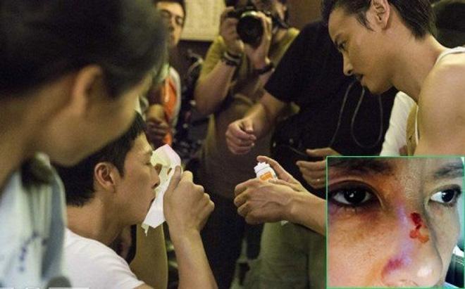 Chân Tử Đan: Hơn 100 lần bị thương, 4 lần suýt mù mắt vẫn chưa muốn giải nghệ - 1