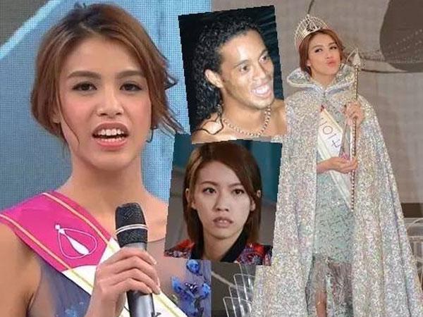 Tân Hoa hậu Hong Kong răng hô, dáng thô, đăng quang nhờ gia thế?