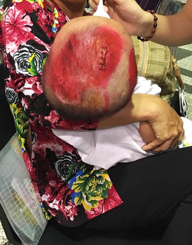 Lời kêu cứu của người vợ bị chồng bỏ rơi, con bệnh não úng thuỷ mấy lần chết hụt khi qua Singapore điều trị - Ảnh 3.