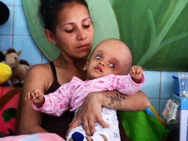 Bệnh tật trong đói nghèo là tận cùng tai họa của người Venezuela