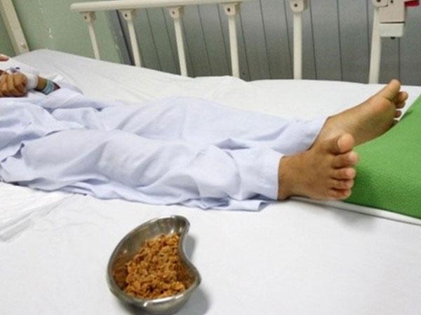 Con đau quặn bụng 4 ngày, mẹ tá hoả phát hiện hàng chục hạt sơ ri trong người bé trai 11 tuổi