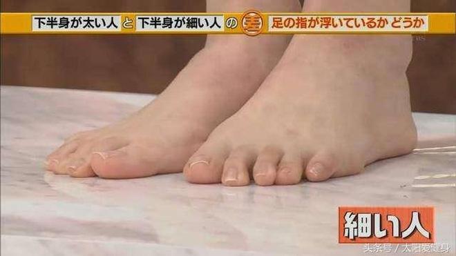 """Đài TBS Nhật Bản chỉ ra nguyên nhân ai cũng mắc khiến chân to như... """"cột đình"""" - Ảnh 3."""