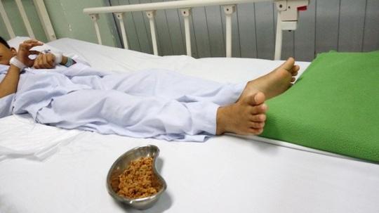 Lấy hơn 70 gram hạt sơ-ri nảy mầm trong hậu môn bé trai - Ảnh 1.