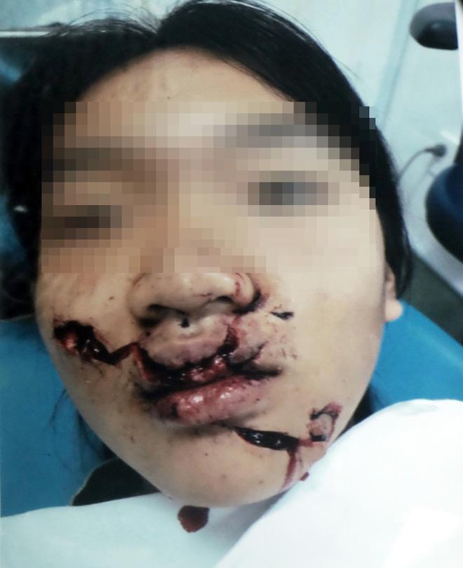 Ngã vào kính trường học trong ngày hành kinh, bé gái 11 tuổi bị huỷ hoại khuôn mặt nặng nề - Ảnh 3.