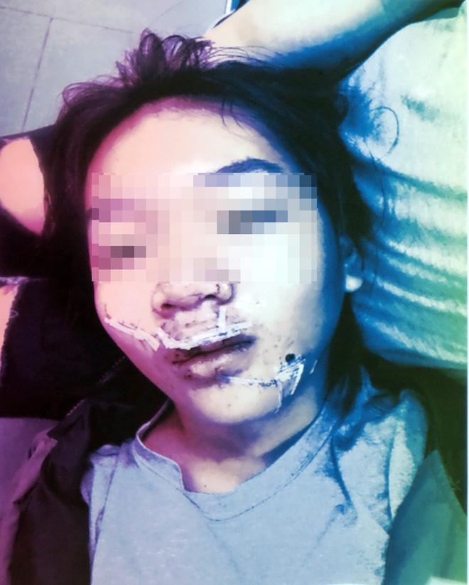 Ngã vào kính trường học trong ngày hành kinh, bé gái 11 tuổi bị huỷ hoại khuôn mặt nặng nề - Ảnh 5.