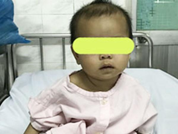 Phụ huynh cẩn trọng: Giật hoa tai của mẹ nuốt vào bụng, bé gái 7 tháng tuổi bị rách thực quản