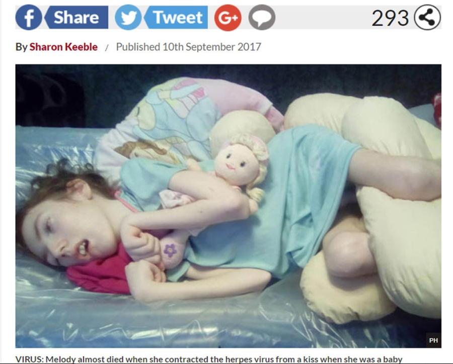 Một nụ hôn của người lớn lên trẻ sơ sinh có thể giết chết trẻ 1