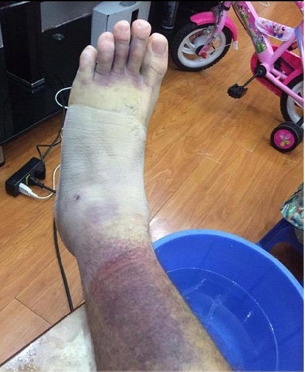Thủ môn Việt kiều Lâm Tây lộ ảnh chân bầm tím khủng khiếp sau vụ bị hành hung - Ảnh 1.