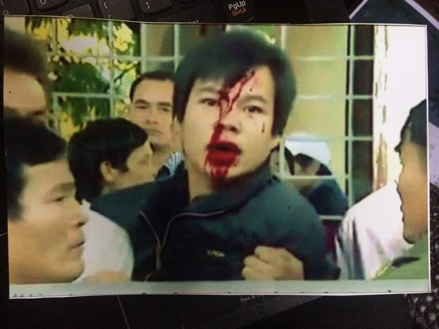 Ảnh anh Đoàn bị đánh vỡ đầu tại buổi họp dân hôm đó. Mặc dù gia đình đã đi kiện nhiều nơi nhưng sự việc gần 1 năm nay mà vẫn chưa được đưa ra ánh sáng (Nguồn: bố nhân vật cung cấp)
