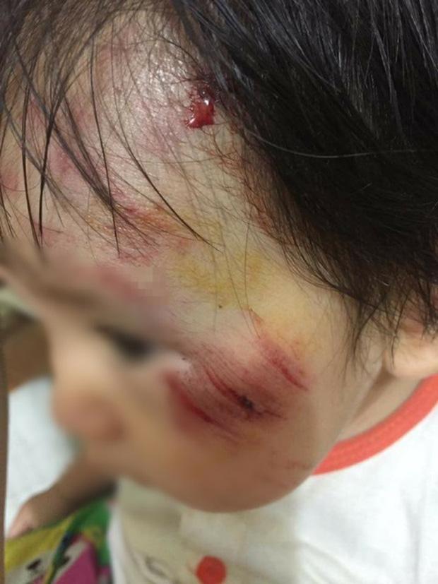 Xác định nam thanh niên tông bé gái 11 tháng tuổi trầy xước mặt rồi bỏ chạy - Ảnh 2.