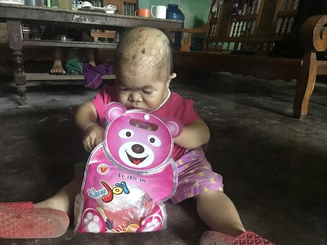 Theo bà Nguyễn, Dung cũng thích nũng nịu đòi đồ chơi mới, vui vẻ khi được mua quần áo đẹp. Ảnh: Minh Anh