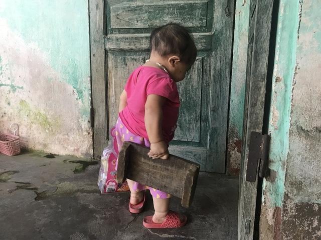 Dung hiếm khi ra khỏi nhà, hàng ngày cô chỉ quanh quẩn làm bạn với những món đồ chơi của mình. Ảnh: Minh Anh.