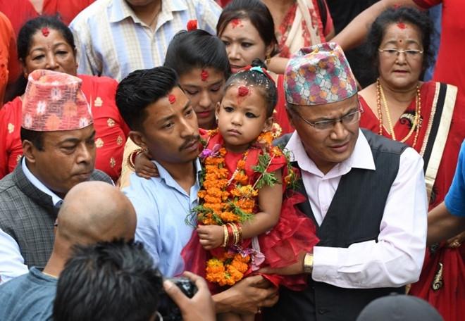 Be gai 3 tuoi tro thanh 'nu than song' o Nepal hinh anh 1