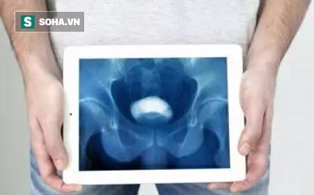 BS cảnh báo ung thư bàng quang đã gặp ở người trẻ: Đi tiểu gặp dấu hiệu này phải khám ngay - Ảnh 2.
