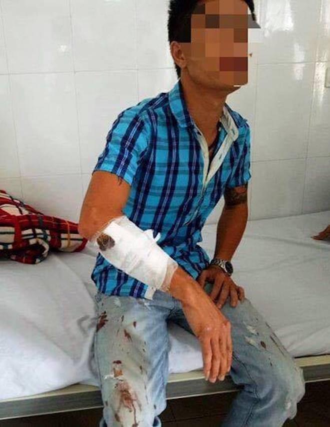 Súng nổ trong đêm ở quán karaoke, 4 người nhập viện cấp cứu - Ảnh 2.
