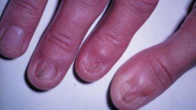 7 nguyên nhân dẫn đến bệnh Lichen phẳng - căn bệnh viêm da không có cách điều trị - Ảnh 1.
