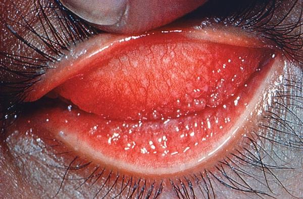 Nhiễm chlamydia trachomatis sinh dục - tiết niệu và những hệ lụy