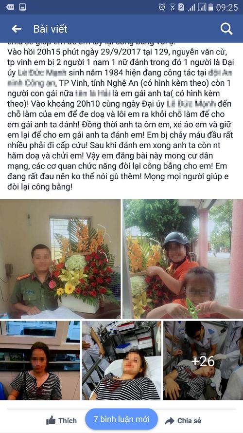 Giám đốc Công an tỉnh Nghệ An chỉ đạo làm rõ việc Đại úy đánh bạn gái nhập viện - Ảnh 2.