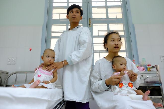 Ngắm vẻ đáng yêu của hai bé gái sinh đôi dính nhau vùng cùng cụt ngày xuất viện - Ảnh 13.