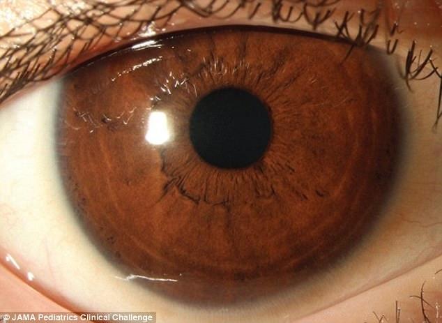 Ăn kiêng nghiêm ngặt, cậu bé 11 tuổi bị suy giảm thị lực và có nguy cơ bị mù vĩnh viễn - Ảnh 3.