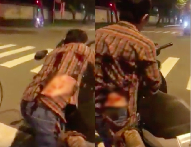 Cãi nhau sau va chạm giao thông, tài xế ô tô cầm rìu chém tới tấp vào lưng người đàn ông ở Sài Gòn - Ảnh 3.