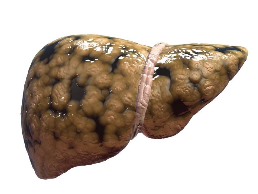 Phát hiện sốc: Thường xuyên ăn kem, uống nước có ga, trẻ dễ mắc căn bệnh nguy hiểm cho gan - Ảnh 2.