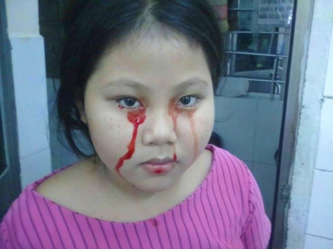 Xót cảnh 3 đứa trẻ bị chảy máu miệng, vợ chồng nghèo ngược xuôi lo cho con bị nói là dựng chuyện lừa đảo - Ảnh 4.