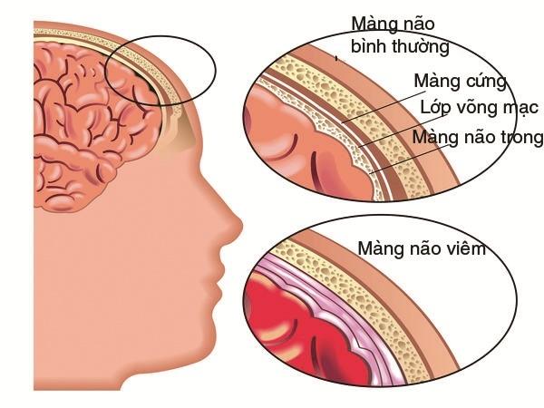Những điều cần biết về viêm màng não - Căn bệnh có thể tấn công bất kỳ ai - Ảnh 1.