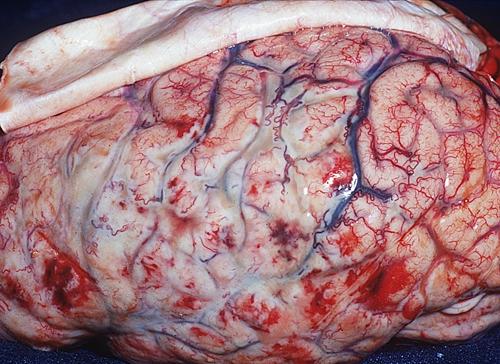 Những điều cần biết về viêm màng não - Căn bệnh có thể tấn công bất kỳ ai - Ảnh 2.