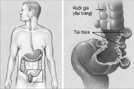 Tự điều trị đau bụng, người đàn ông suýt chết - Ảnh 3.