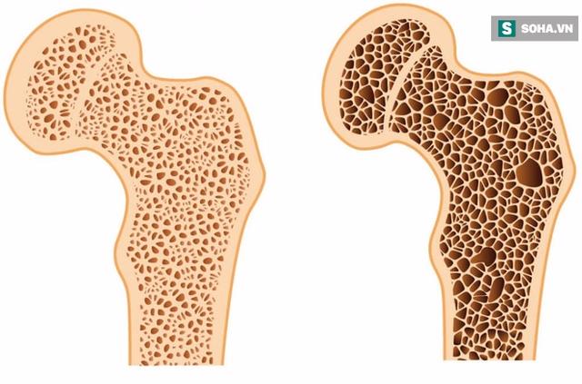 Xương khỏe mạnh và xương bị loãng (xốp).