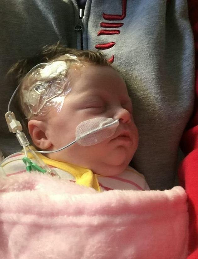 Ava-Rose bị cạo trọc một bên để bác sĩ truyền dinh dưỡng qua đường tĩnh mạch trên đầu
