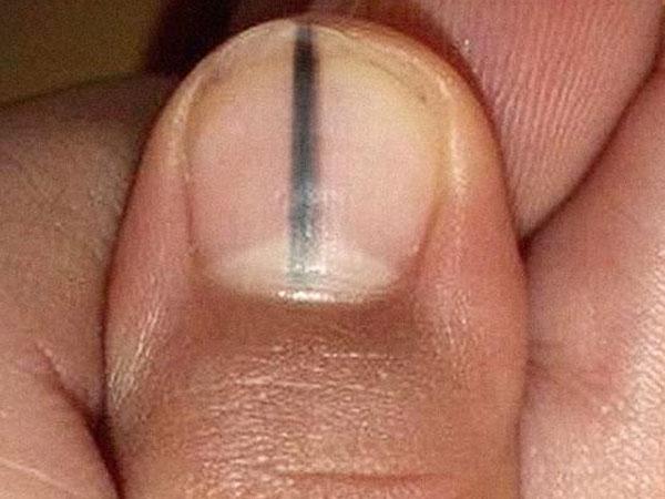 Câu chuyện kinh hãi này sẽ lý giải vì sao bạn không được bỏ qua một vết sọc đen trên móng tay