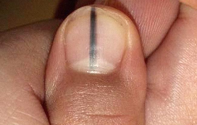 Câu chuyện kinh hãi này sẽ lý giải vì sao bạn không được bỏ qua một vết sọc đen trên móng tay - Ảnh 1.