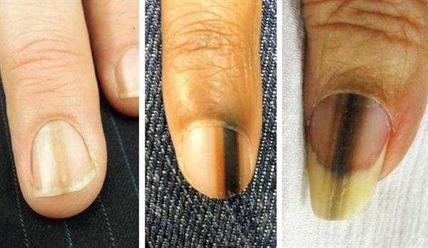 Câu chuyện kinh hãi này sẽ lý giải vì sao bạn không được bỏ qua một vết sọc đen trên móng tay - Ảnh 3.
