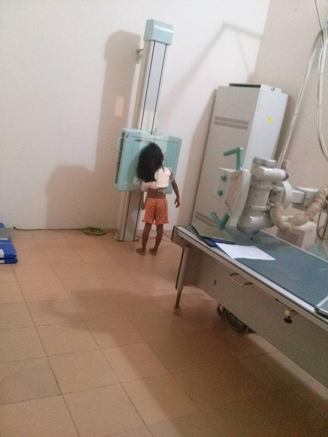 Tối qua 13/10, bé H. được chuyển xuống bệnh viện tỉnh Vĩnh Phúc để bó bột.