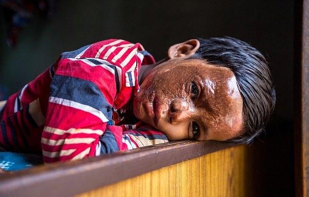 Sau ba cuộc phẫu thuật, thị lực của Aditya đã phục hồi nhưng cậu bé sẽ phải mang khuôn mặt sẹo suốt đời