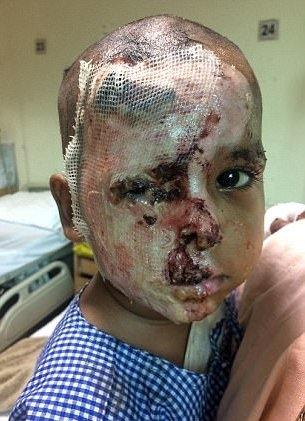 Gương mặt thê thảm của Aditya sau khi bị tạt axit