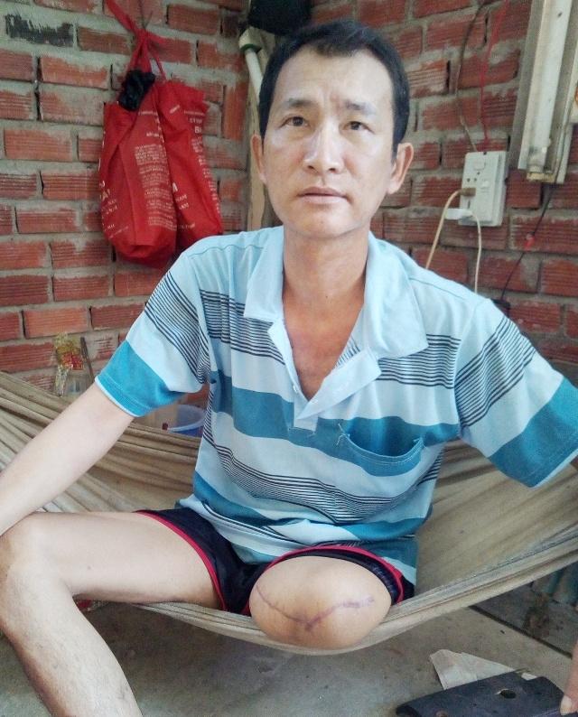 Bệnh viện và gia đình anh Lý Thanh Trường thống nhất mức hỗ trợ là 170 triệu đồng.