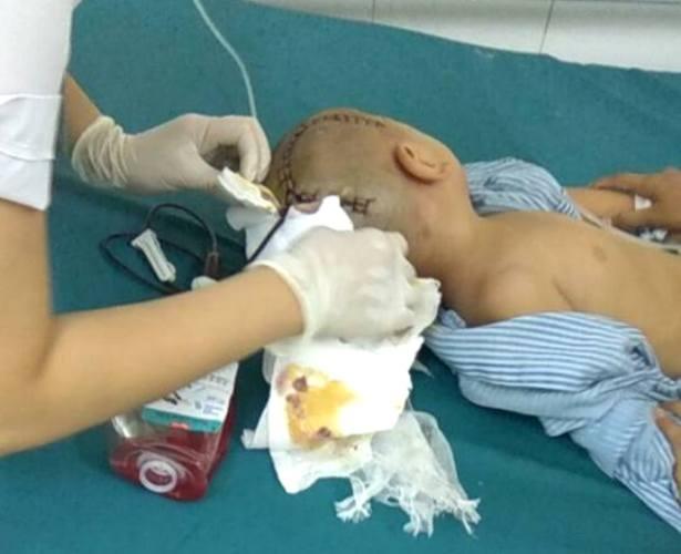 Cháu B. được mổ cấp cứu tại bệnh viện sau khi bị đập đầu vào cửa. Ảnh: (Gia đình cung cấp)