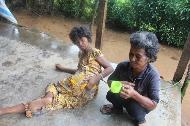Mẹ già ngã bệnh nhập viện điều trị, 4 người con tâm thần lại bơ vơ đợi mẹ về cho ăn cơm - Ảnh 2.