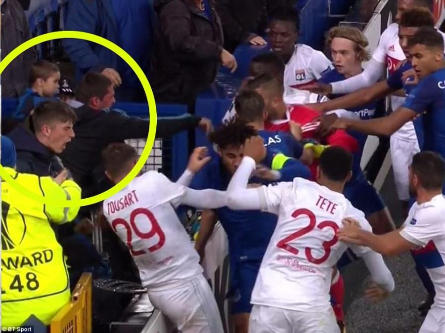 CDV Everton vua be con, vua tham gia danh cau thu Lyon hinh anh 5