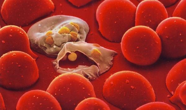 Vì sao chỉ từ 1 vết cắn mà có thể gây nhiễm trùng máu lấy đi mạng người? - Ảnh 2.